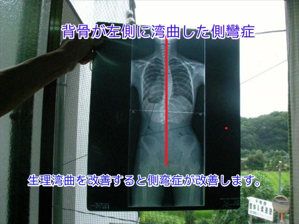 背骨が左側に湾曲したレントゲン画像