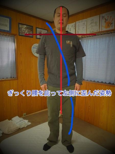 ぎっくり腰T_Ink_LI