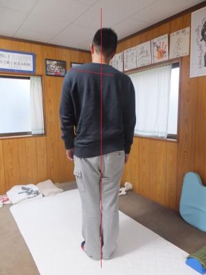 体の歪みと肩甲骨の痛み