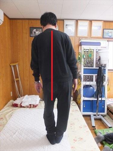 体の歪みによる腰痛