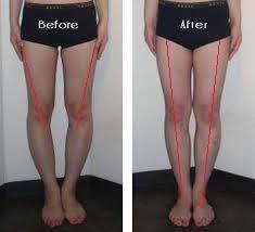 XO脚の施術の前後