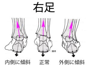 足関節の歪み