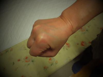 指を握ると痛い
