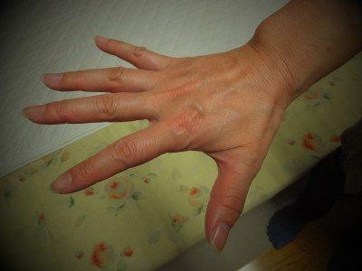 指を開くと痛い
