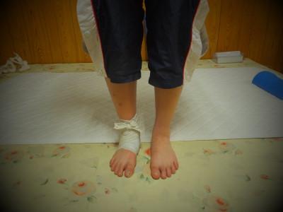 足関節の整復後サラシで固定して終わり