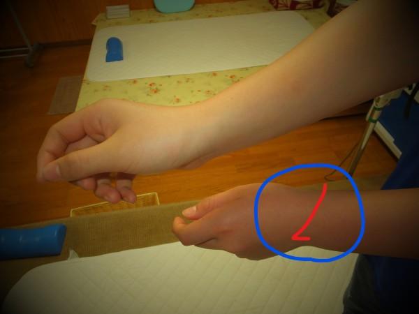 手首関節の微脱臼