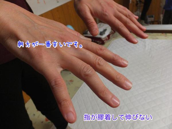 指先のリウマチ