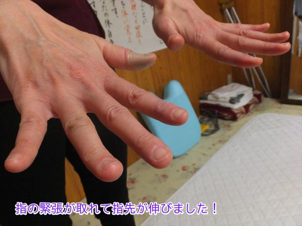 指先のリウマチが改善しました。