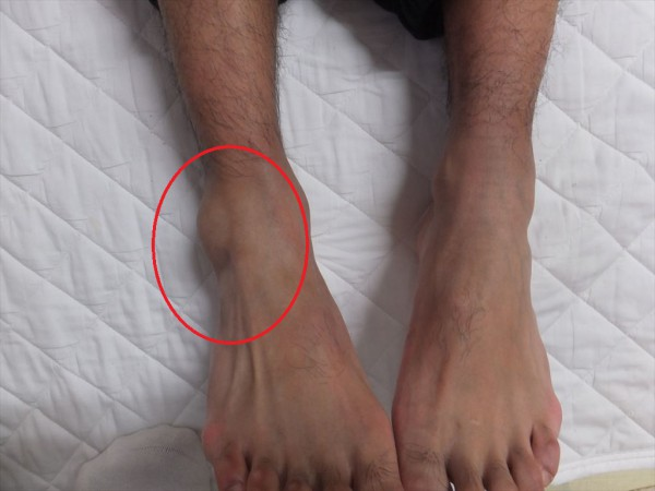 足関節の微脱臼