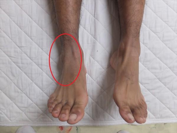 足関節の微脱臼整復終わり!