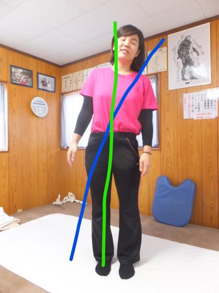 体の軸が歪んでいる状態