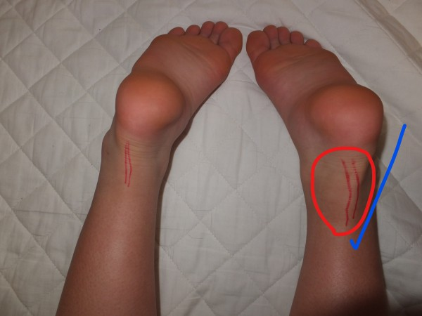 アキレス腱の歪みと炎症が改善されました