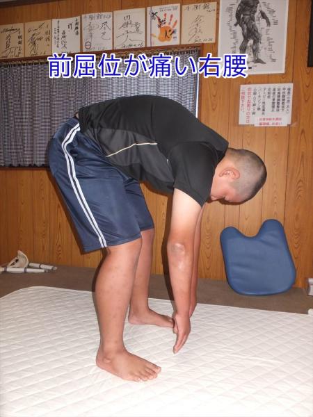 足首捻挫と右股関節可動域低下が原因