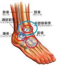 足関節靭帯損傷部位